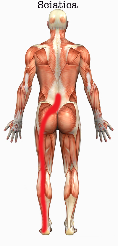 Low back and leg pain (Sciatica) - Graham Chiropractic